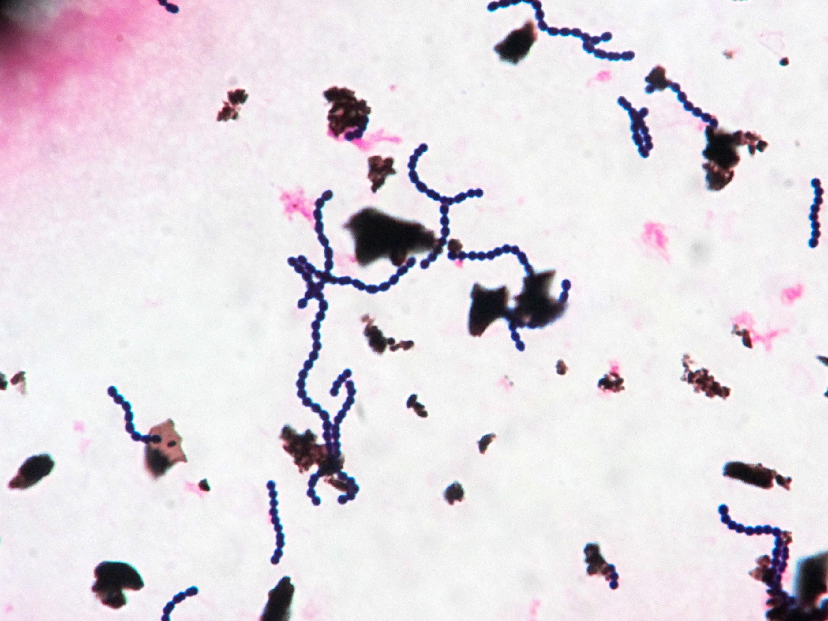 Streptococcus dysagalactiae