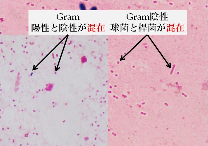 Acinetobacter baumannii肺炎 〔...