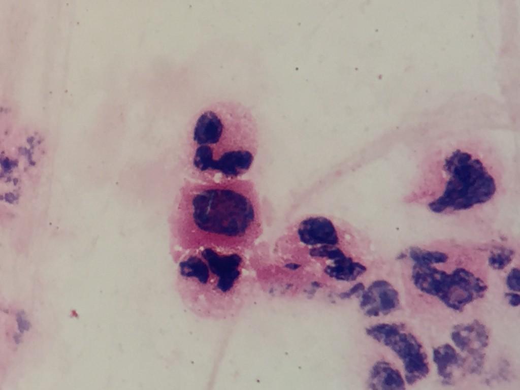 Mycobacterium tuberculosis 〔Ghost Bacillus:結核〕