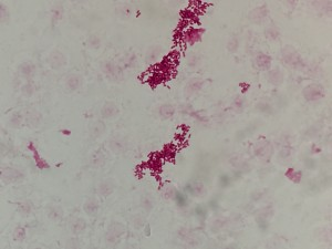Acinetobacter lwoffii