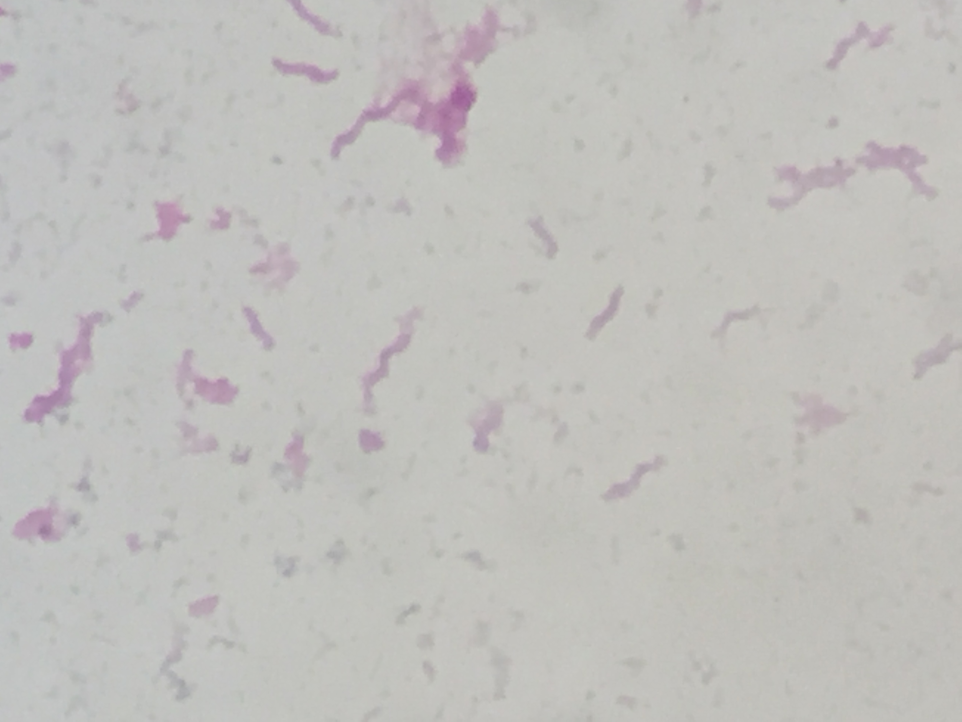 Anaerobiospirillum succiniciproducens〔嫌気性らせん桿菌〕