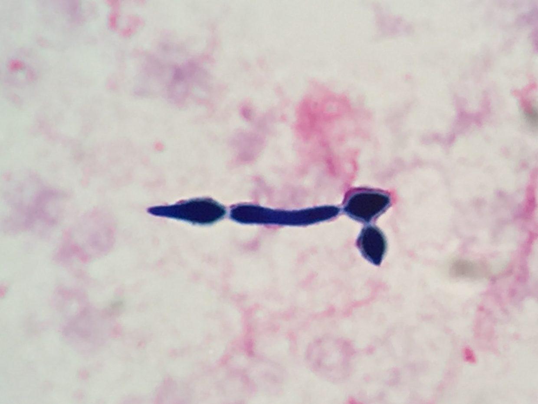 Candida albicans〔一般的カンジダ〕