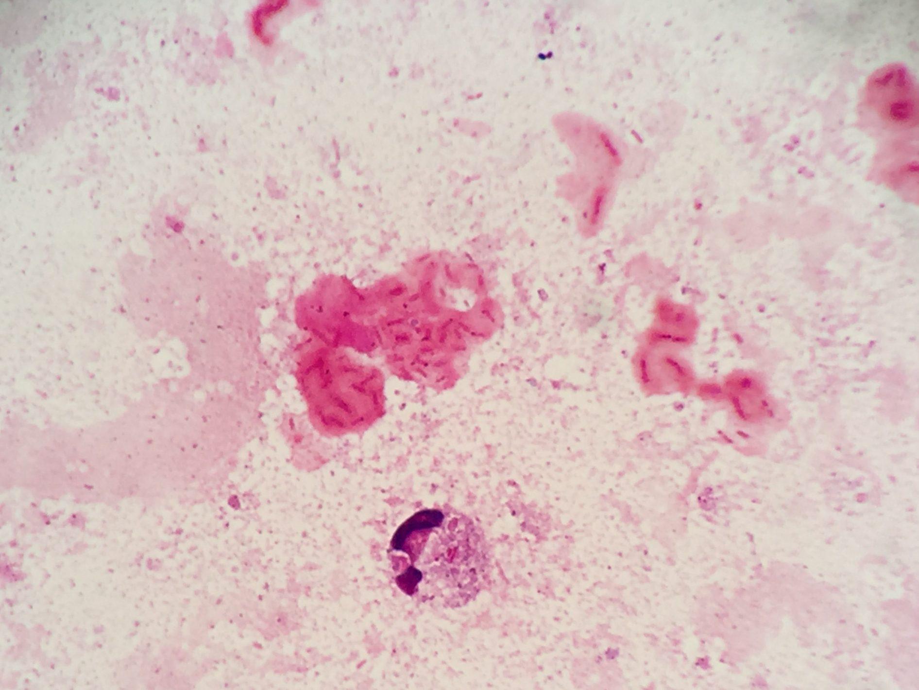 P.aeruginosa with mucoid 〔緑膿菌:ムコイド産生型〕