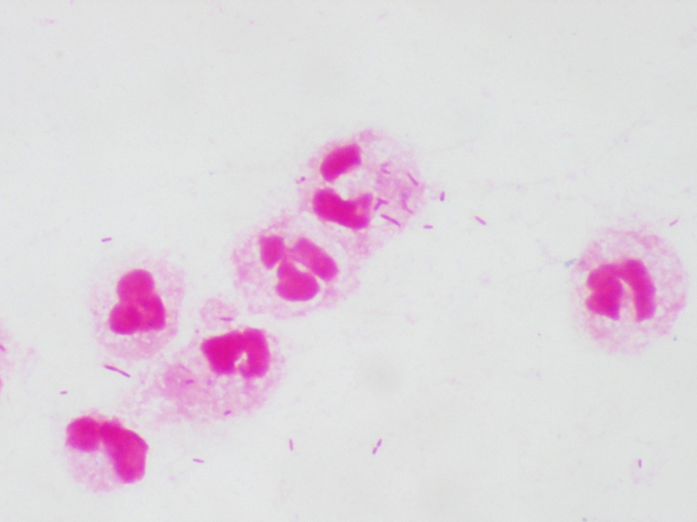 Pseudomonas aeruginosa〔緑膿菌〕