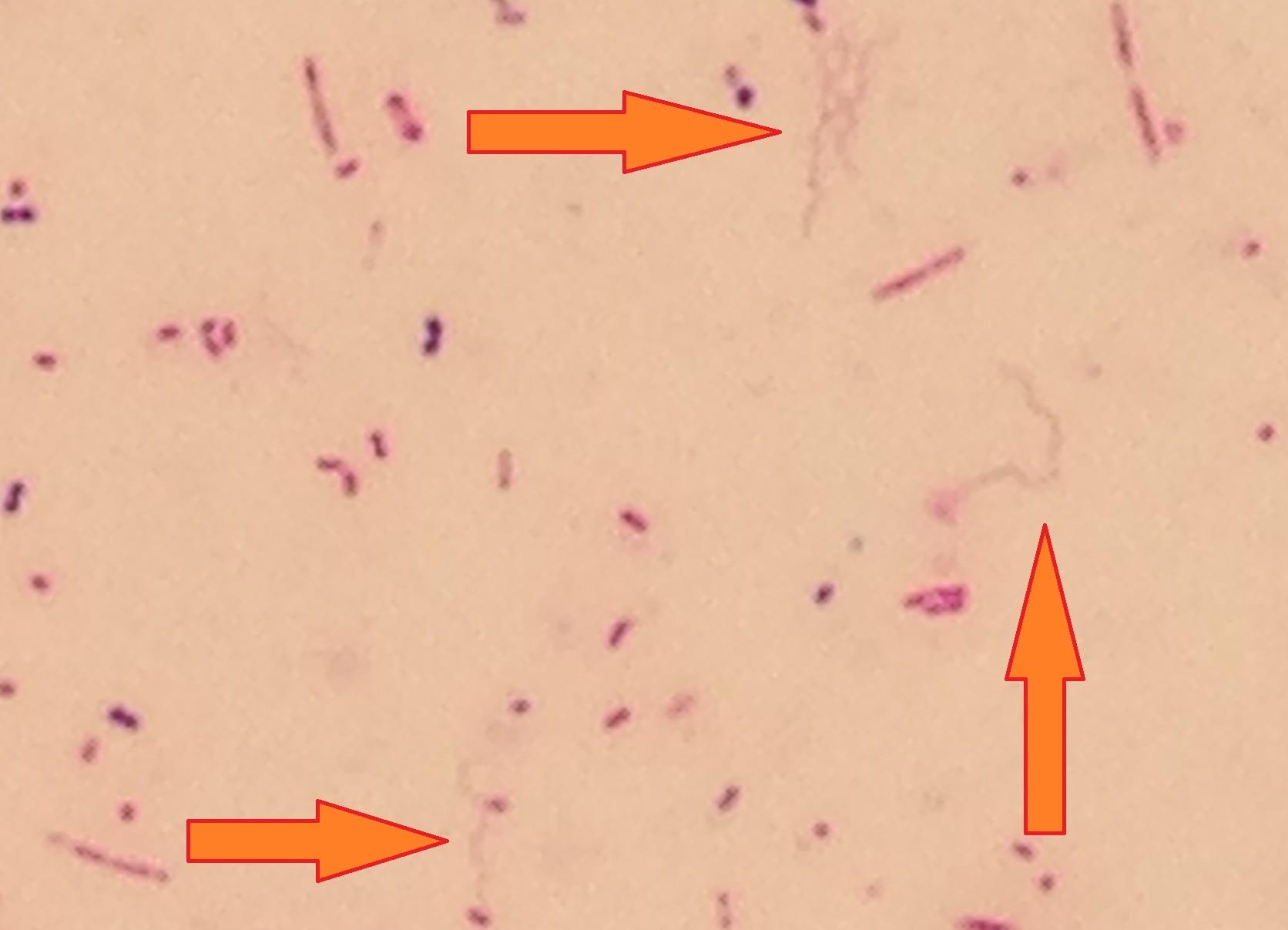 Brachyspira 〔腸管スピロヘータ〕