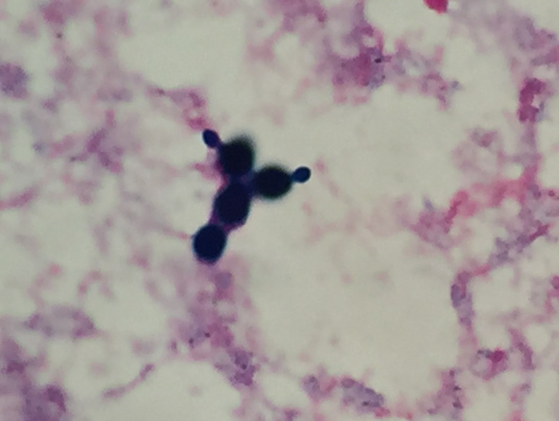Saccharomyces cerevisiae 〔ビール酵母〕
