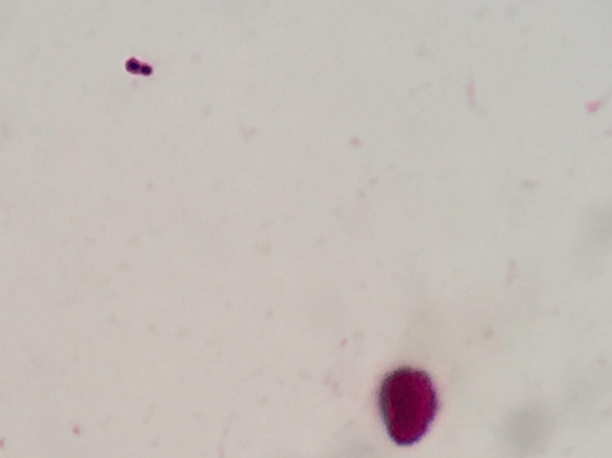 Streptococcus pneumoniae〔肺炎球菌〕