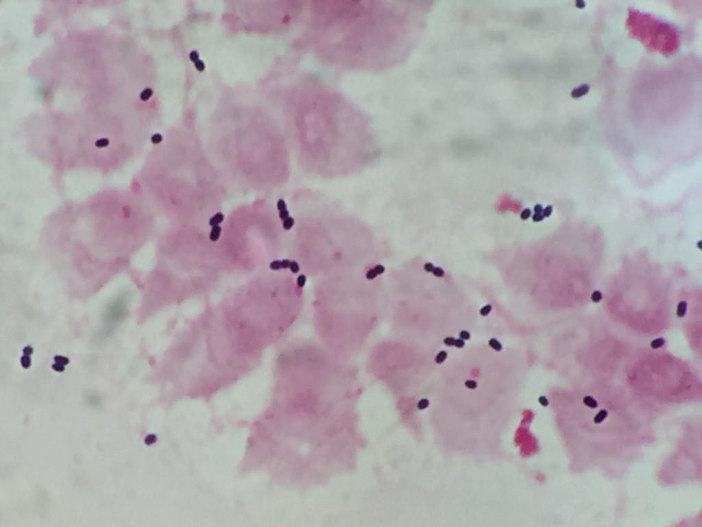 Leuconostoc mesenteroides 〔VCM無効菌〕