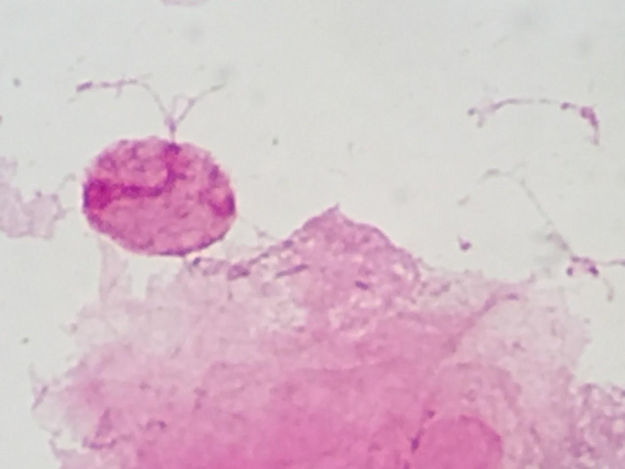 Trichomonas vaginalis 〔トリコモナス〕