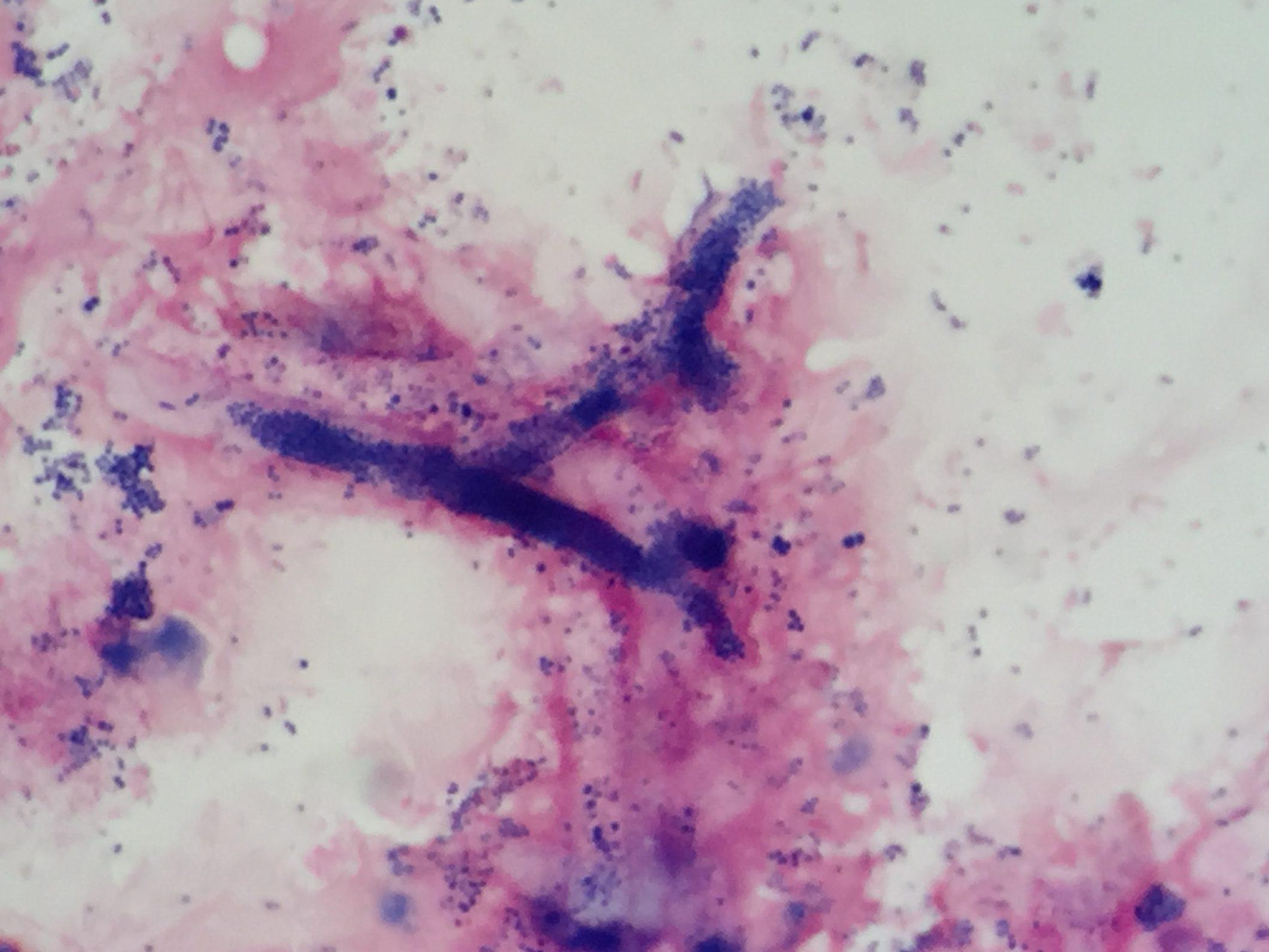 Aspergillus flavus〔アスペルギルス〕