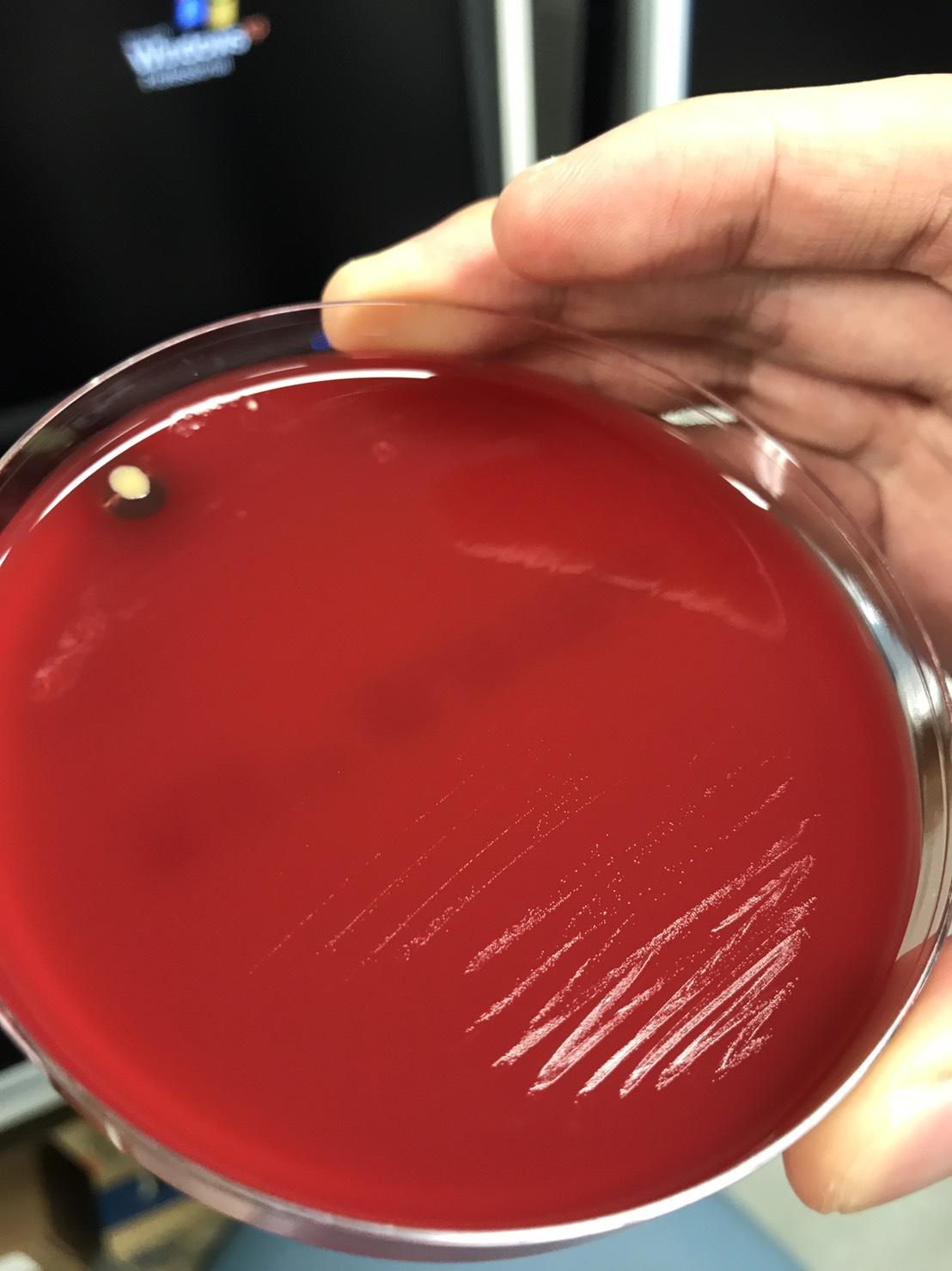 Mycoplasma hominis〔なにこれ見えない〕   グラム染色: Gram Stain